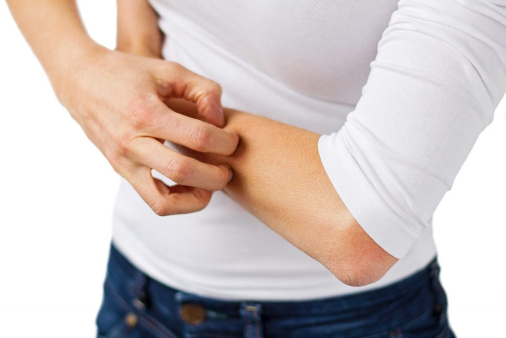 Learn How to Avoid Dry Itchy Skin In The Winter