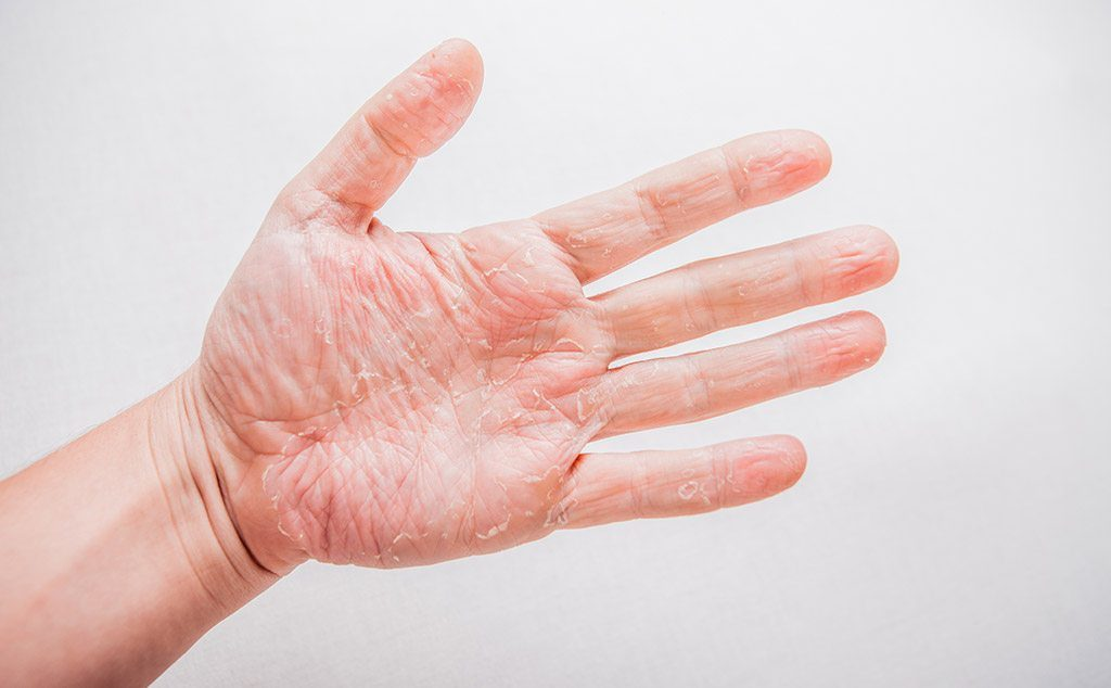 What Is Eczema And How Do You Treat It?