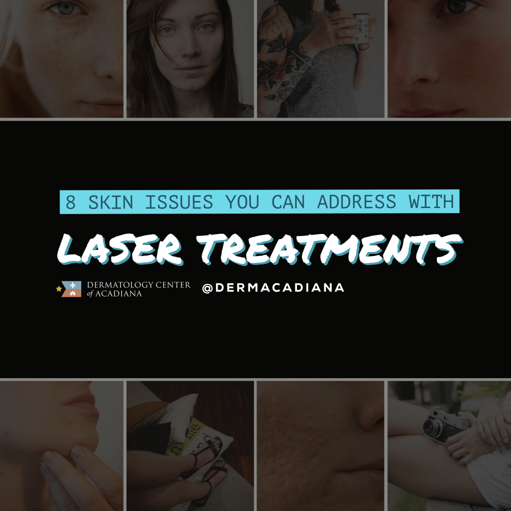 8 Skin Issues You Can Treat with a Laser