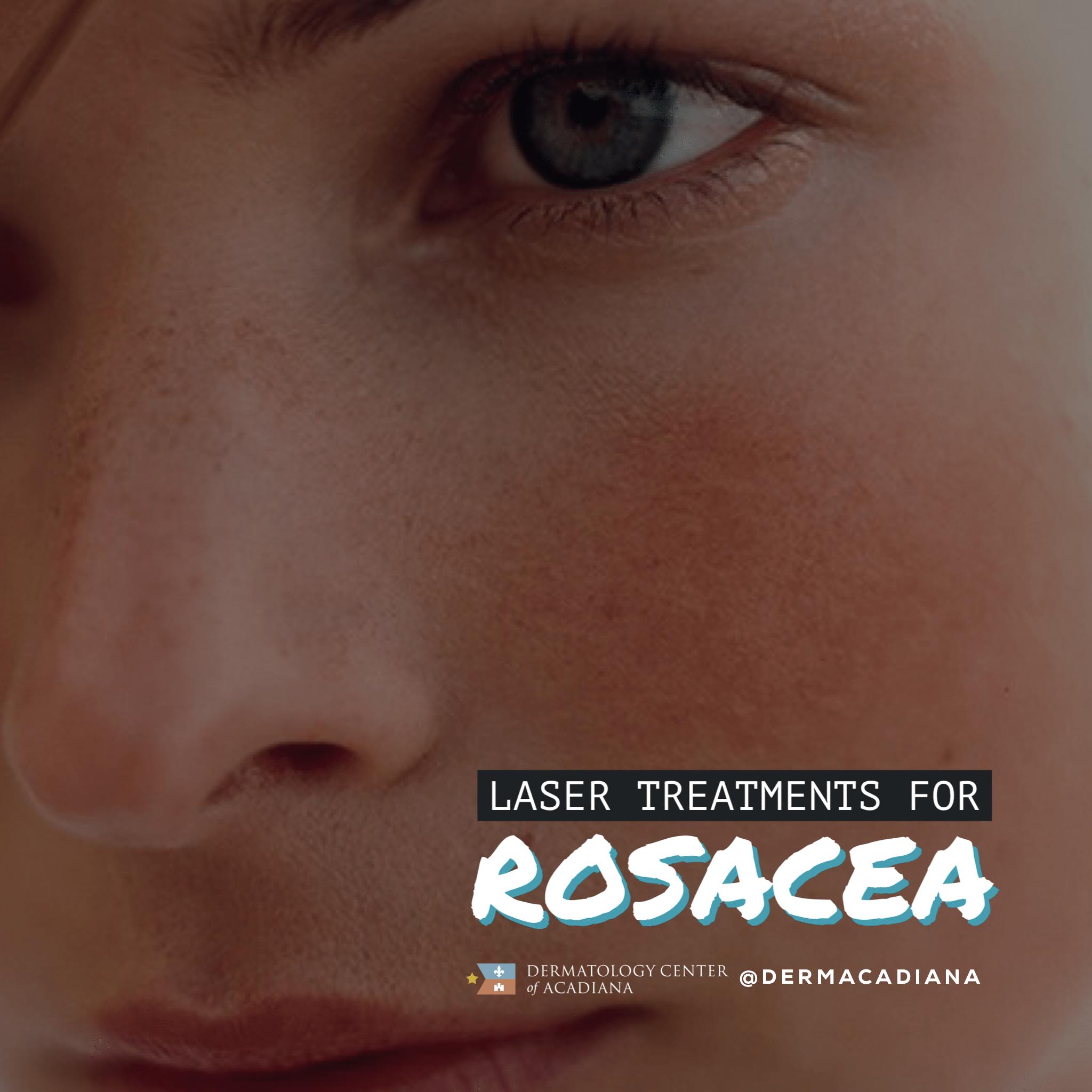 Rosacea_Laser_Treatments_Lafayette_Acadiana_Louisiana
