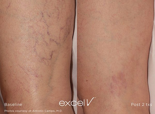 spider veins, Laser Treatment for Vascular Lesions or Spider Veins