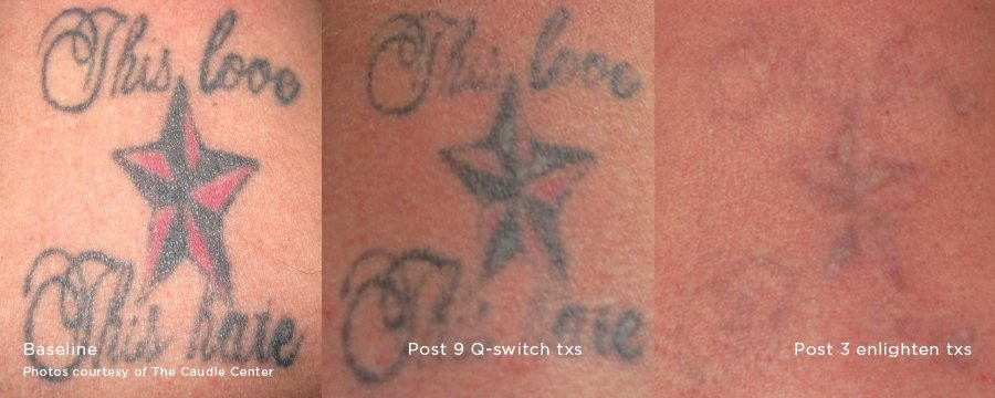 tattoo removal, Laser Treatment
