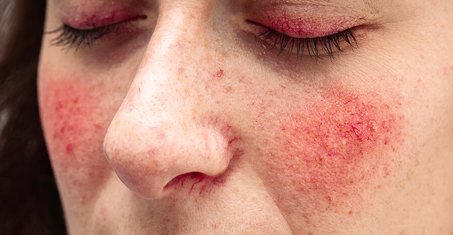 acne, Acne and Rosacea