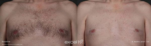 laser hair removal, Laser Hair Removal Treatment for All Skin Types