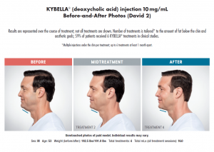 Kybella, Treating a Double Chin with Kybella