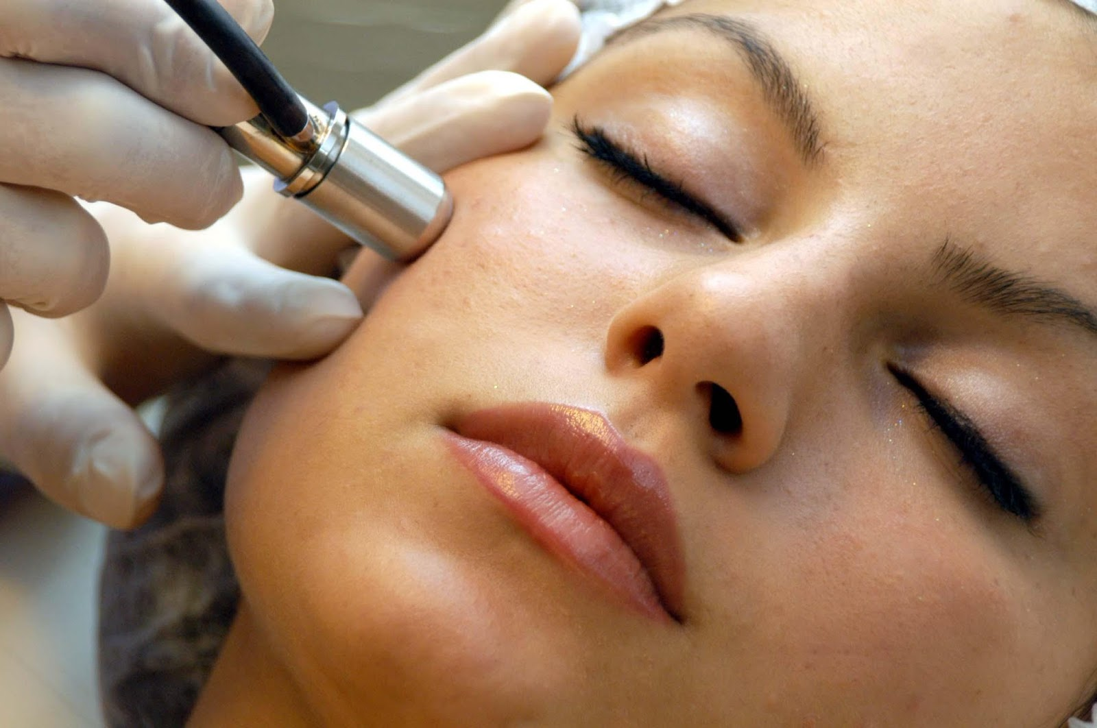 microdermabrasion, What Is a Microdermabrasion Facial?